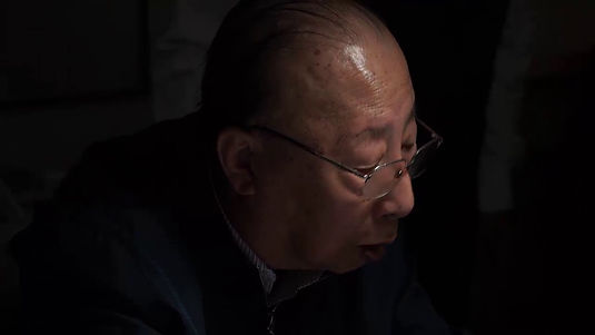 Professor Zhang demonstrating an advance acupuncture technique