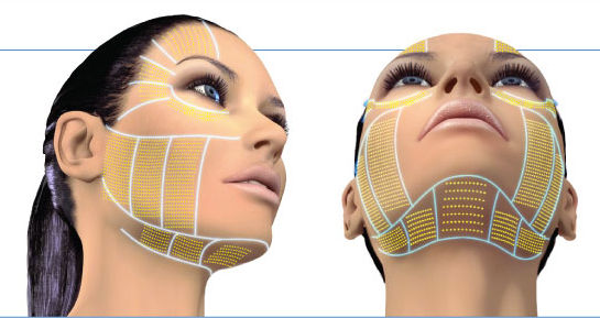 ultherapy-technology.jpg