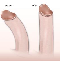 curved penis, bent penis