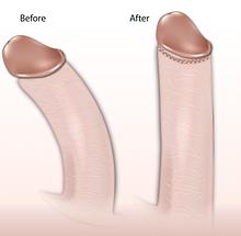 Bend In Penis 39