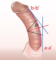 analyzing curved penis, bent penis