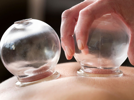 Koppning - mot smärta och stelhet