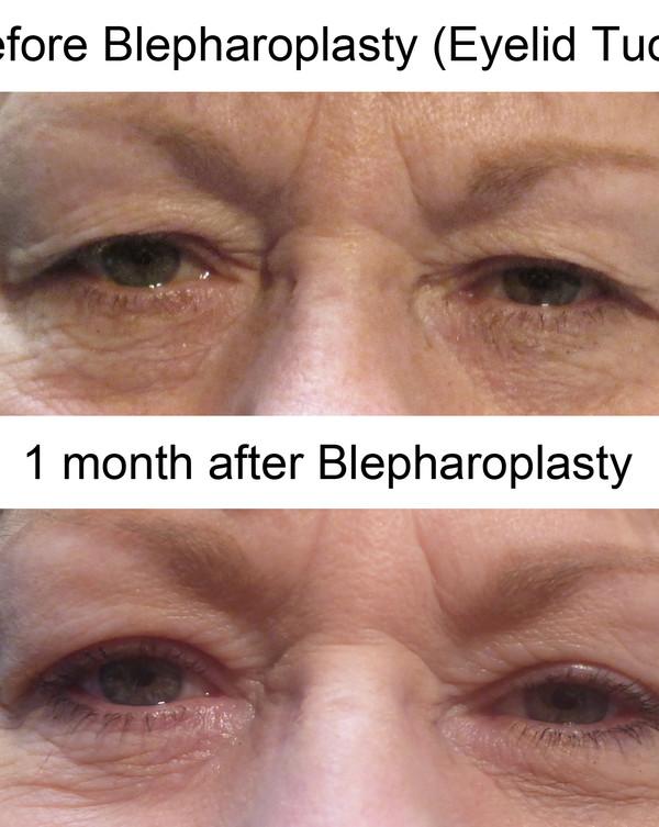 Bleph BP.jpg