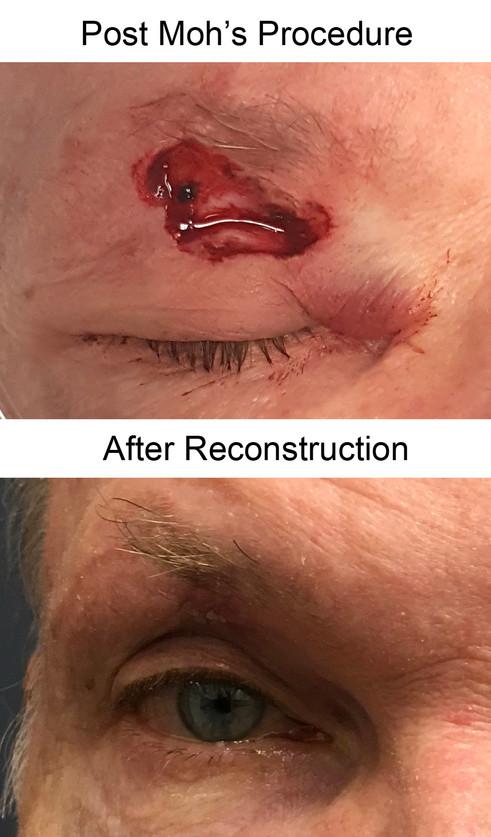 Reconstruction DM.jpg