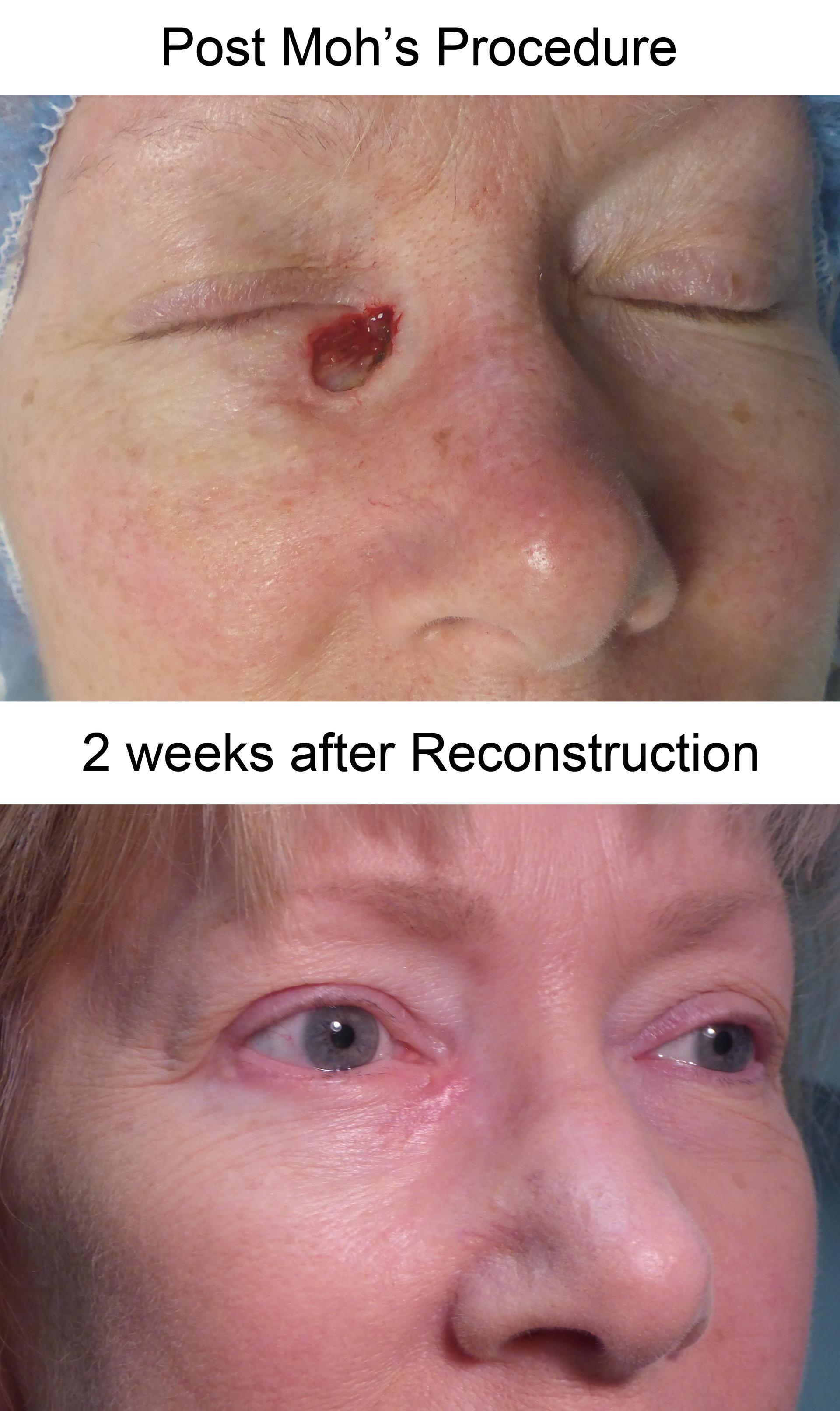 ReconstructionPostMohs-KT.jpg