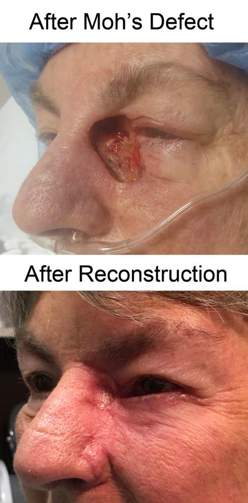 Reconstruction LC.jpg