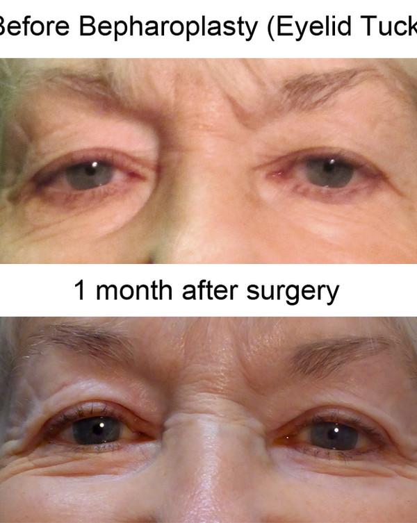 Blepharoplasty FG.jpg