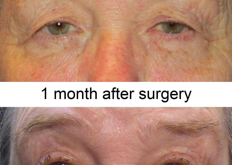 Blepharoplasty LW.jpg