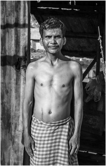 Cambodian man after surgery
