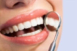 whiteteeth.jpg
