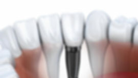 ct-dental-implants-jpg-20150709.jpg