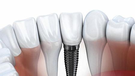 ct-dental-implants-jpg-20150709.jpg