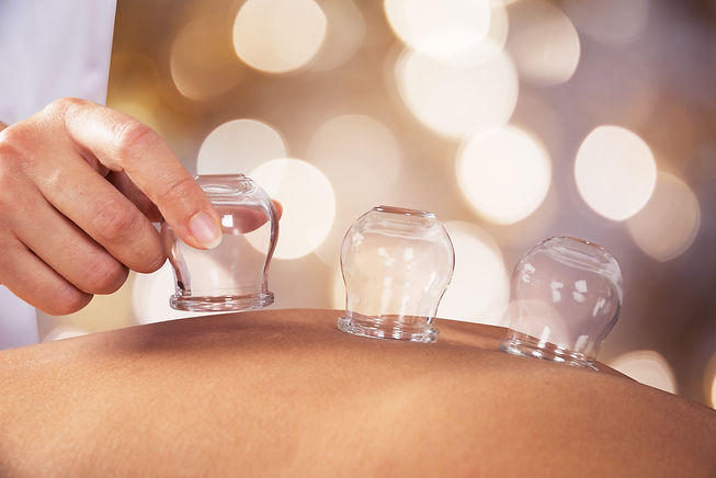 Close-up Of A Person Receiving Cupping T