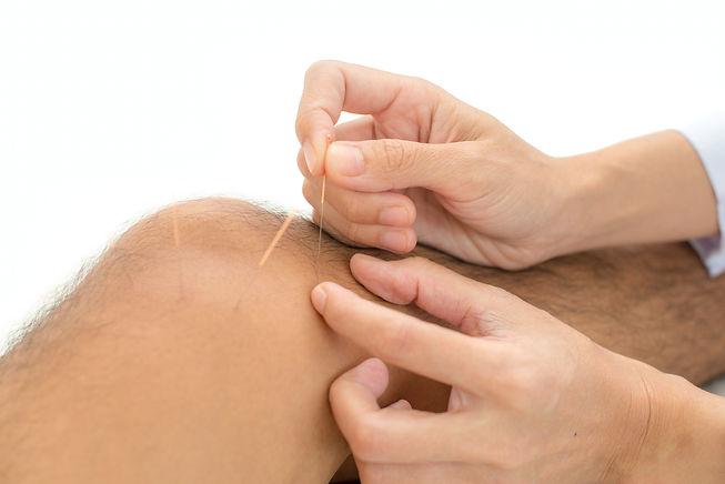 Acupuncture - Chinese alternative medici