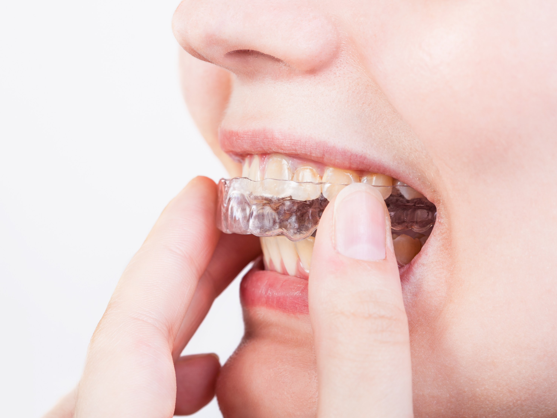girl fixes transparent aligner for denta