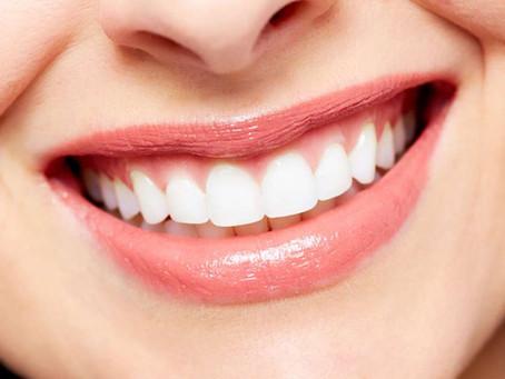 Clareamento dental: tudo o que você precisa saber