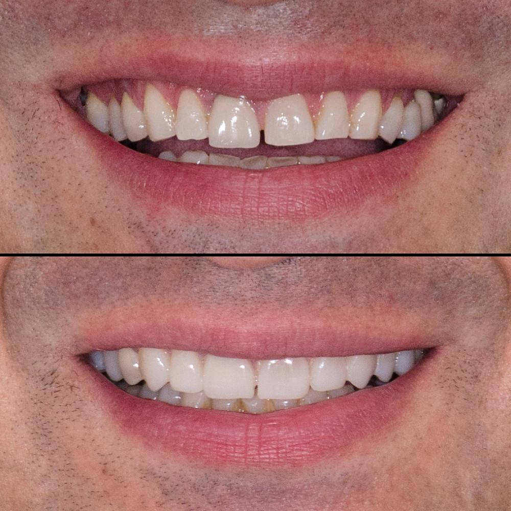 Mockup instalado para teste do novo sorriso