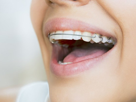 APARELHO MÓVEL: a importância do uso após o tratamento ortodôntico