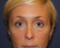 før lipoinjektion ansigt