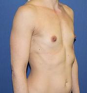 brystforstørrelse eget fedt