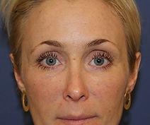 fedtinjektion i ansigt efter 2.jpg