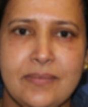 efter lipoinjektion i ansigt