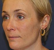 lipofilling i ansigt efter 1.jpg