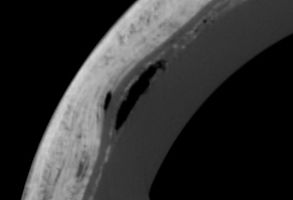 CT scan of carbon fiber baseball bat with potential defects, lamination layers and voids