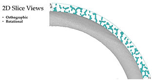 2-dimensional slice view from CT scan of a 3D printed hip cup