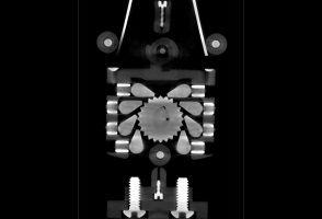 CT scan of prosthetic limb