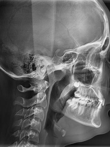 Телерентгенограмма(ТРГ) боковая.jpg