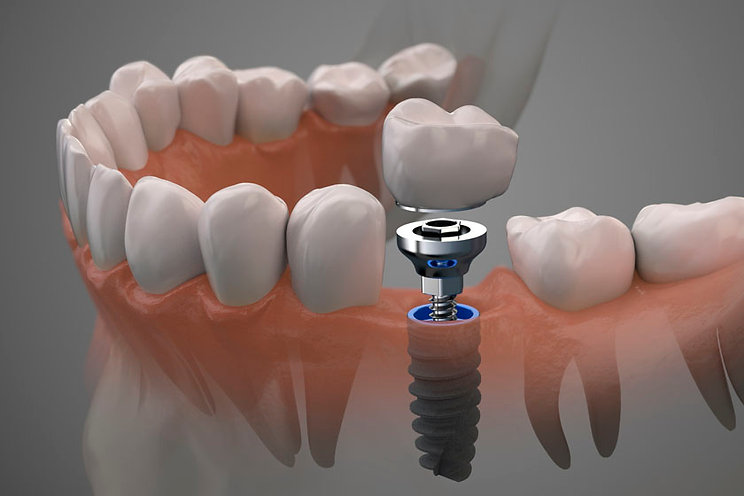 имплантация зубов.jpg