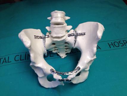 Planificación fractura de pelvis
