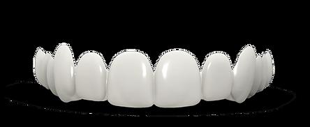 dental veneers Houston