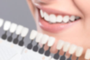 cosmetic dentist Houston