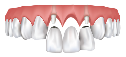 dental bridge Houston