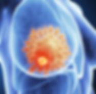 МРТ молочных желз