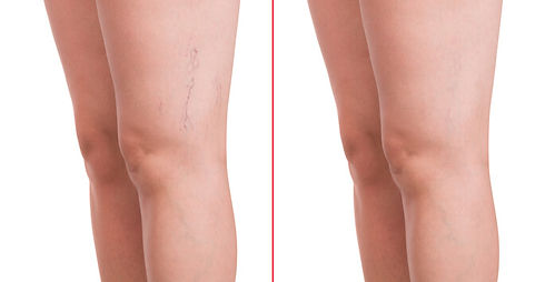 spider-vein-treatment.jpg
