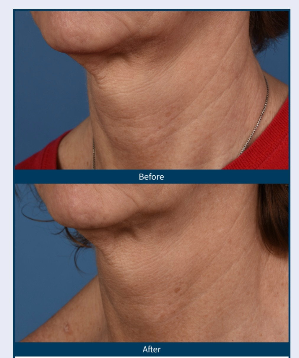 Microneedling Neck and Décollette