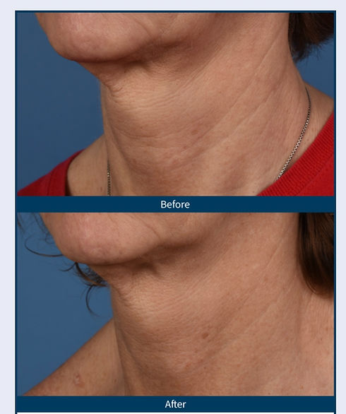 microneedling neck_edited.jpg