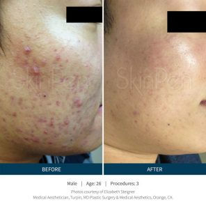 Microneedling Consultation for Acne/Scar