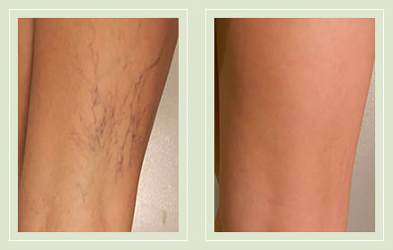 Spider Vein Sclerotherapy Consultation