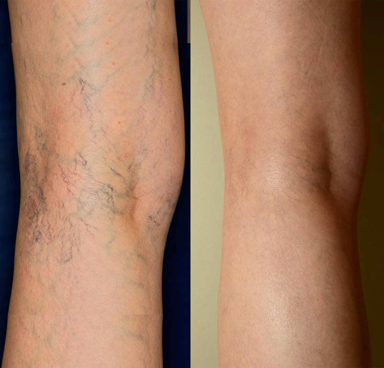 Sclerotherapy Follow up