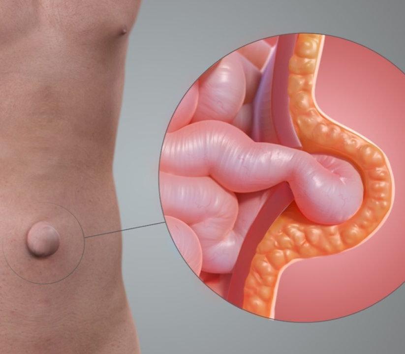 Cirugía de hernias