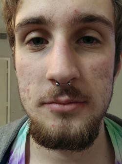 Front View Septum Piercing