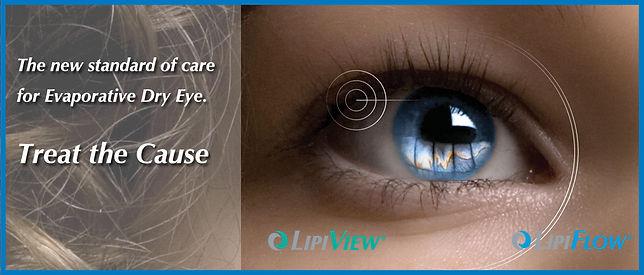 Lipiflow Virginia, Lipiview Virginia, Dry Eye Northern Virginia, Fairfax lipiflow, Dry eye fairfax virginia