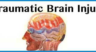 Traumatic Brain Injury and the Eyes.