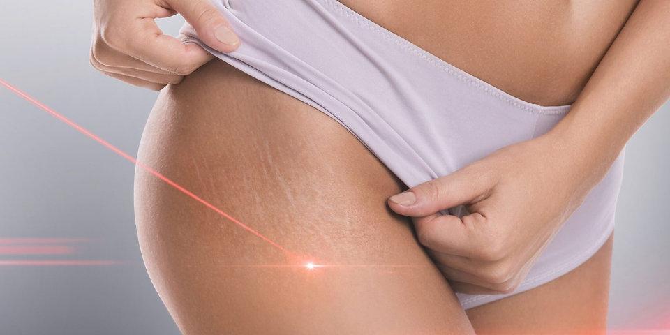 Stretch-marks-during-laser-removal-sessi