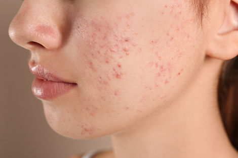 Teenage girl with acne problem on beige