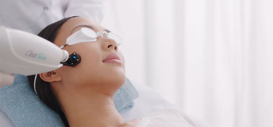 laser-acne2.jpg
